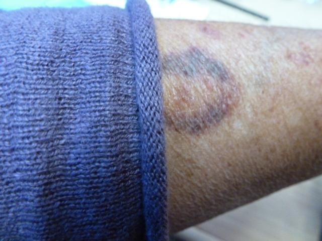 Aspirin 'bruises'