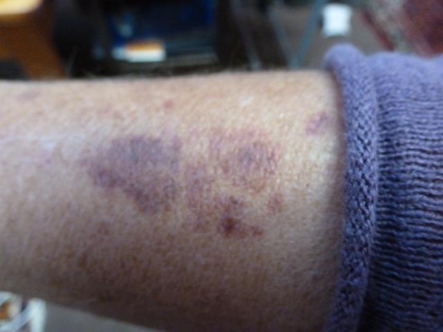more Aspirin 'bruises'